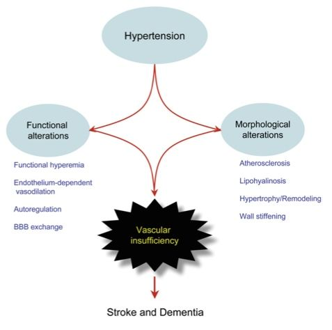 dementia function Do you know what the difference between dementia and alzheimer's disease is dementia is a group of symptoms and an umbrella.
